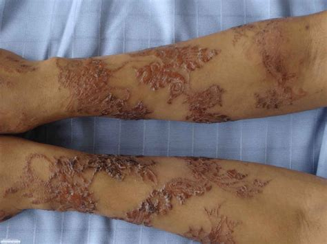 treatment for henna tattoo allergy fda warns allergic risks to temporary tattoos the