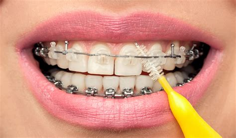what color are your gums supposed to be orthodontic emergencies ottawa orthodontist braces