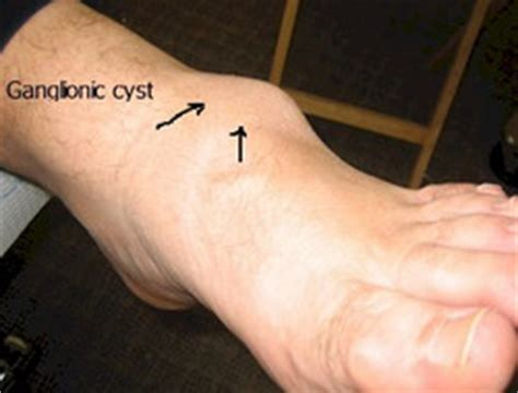 cyst on leg ganglion cyst symptoms causes pictures surgery treatment