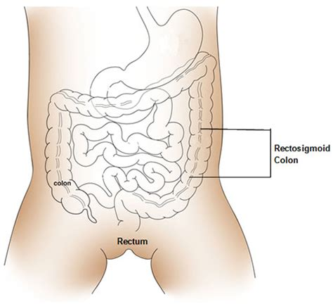 What Causes Stool Incontinence by Fecal Incontinence And Anorectal Malformations