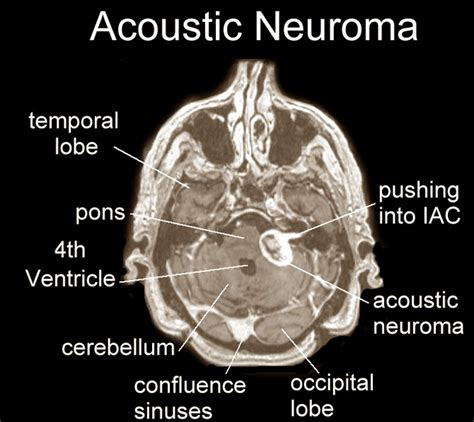 best acoustic neuroma surgeons hair loss causes 2017 2018 best car reviews