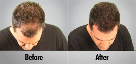 hair transplant cost 2014 2014 robotic fue hair replacement costa rica frolic with