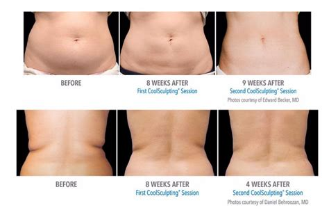 coolsculpting arms before and after pictures coolsculpting 174 concierge spa