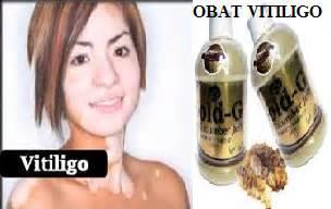 Obat Tradisional Kulit Vitiligo obat kulit tradisional atasi vitiligo jual obat herbal