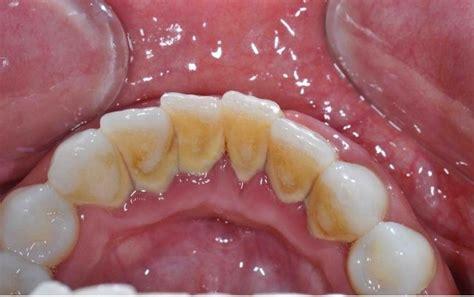 Bersihkan Karang Gigi Di Klinik tak payah buat scaling lagi kerana 7 bahan semulajadi