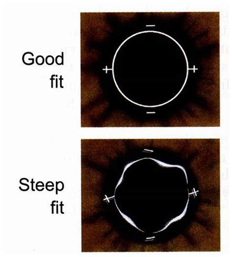 importance of repeatable over refraction: toric contact lenses