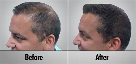 before snd after picture of hair growth in eonen biotin before and after men www pixshark com images