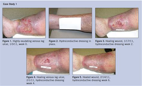 wound bed wound bed 28 images wound bed tissue types pictures to