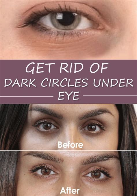 Get Rid Of Eye Circles Right In The Comfort Of Your Own Home by Get Rid Of Circles Eye Glavportal