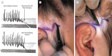 occipital hair tuft images techniques for creating inconspicuous face lift scars