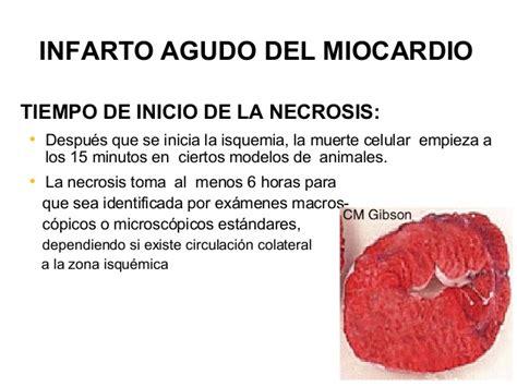 infarto del miocardio infarto agudo del miocardio