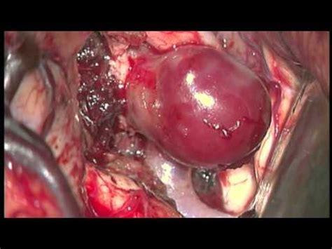 aneurisma carotide interna aneurisma de 233 ria car 243 tida interna paraclin 243 ideo dr