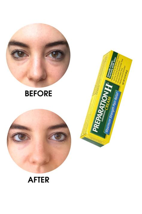 best eye treatment eye treatments that really work remedies strength