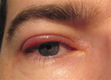 Obat Infeksi Mata Bintitan mengobati bintitan dengan cara sederhana khasiat dan manfaat