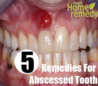 Abscessed Tooth Home Remedy by Abscessed Tooth Www Pixshark Images Galleries With