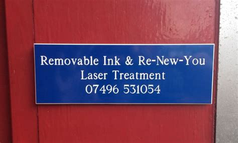 tattoo prices taunton removable ink tattoo removal company in taunton uk