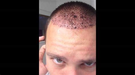 merica mexico hair transplant post hair transplant day 4 youtube