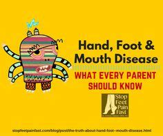 Parent Letter Foot Disease 1000 Images About Home Remedies On Foot And Cold Sore And Home Remedies