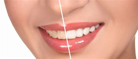 teeth whitening  vancouver dentist  east vancouver