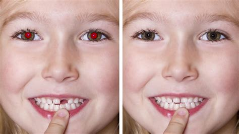 removing eye in photoshop and fixing teeth the easy