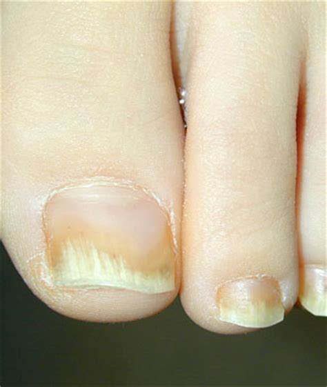 yellow nail beds nail health fingernail problems linked to health problems
