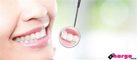 Untuk Membersihkan Karang Gigi update biaya membersihkan karang gigi scalling di puskesmas rumah sakit klinik daftar
