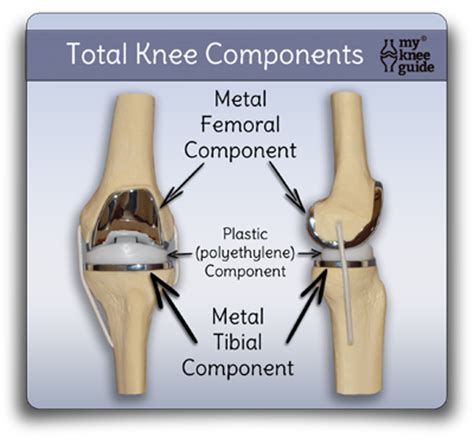 Dislocation Movement In Ceramics - does my knee replacement prosthetic weigh more or less