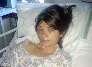 younger hair after brain surgery teenager stuns doctors after incredible recovery from