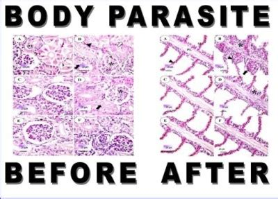 Detox Diets Scholarly Articles by 100 Parasite Cleanse Detox Liver Colon Yeast Blood Kill