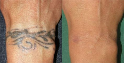 revlite tattoo removal reviews removal in punjab revlite laser in punjab skin