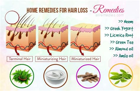 home remedies for hair loss for over 50 70 best natural home remedies for hair loss in males females
