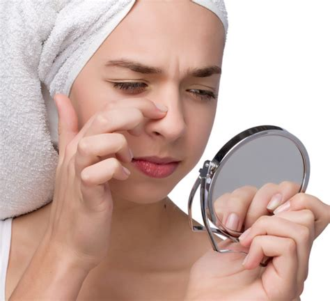 Did Get A Nose 2 by How To Get Rid Of Blackheads Fast Home Remedies