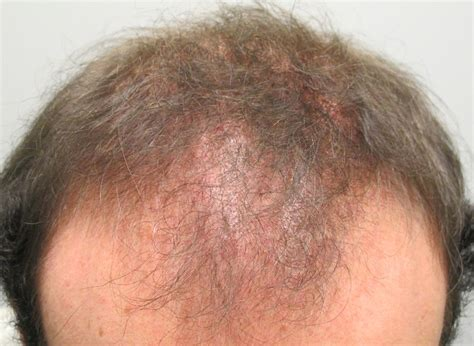 Male Pattern Hair Loss Emedicine | scarring cicatricial alopecia bernstein medical