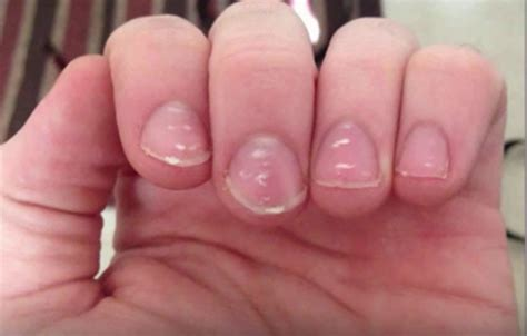 white fingernail beds white spots on nail beds 28 images perrypie s nail