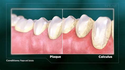 plaque  calculus fort worth dentist  street