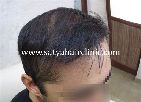 reviews on synthetic hair transplant synthetic hair transplant biofibre 1400 grafts