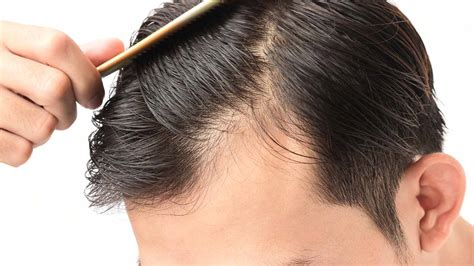 male pattern hair loss natural remedies remedies for me natural home remedies
