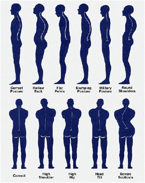 overcoming poor posture a systematic approach to refining your posture for health and performance books postural assessment visual observation