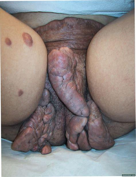Gross Penis Disease Yuck Gore