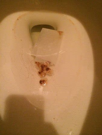 mucus diarrhea gallery