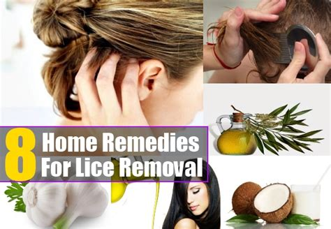lice home remedies and cures for common