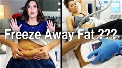 how much does a coolsculpting machine cost how much does a coolsculpting machine cost buyerpricer