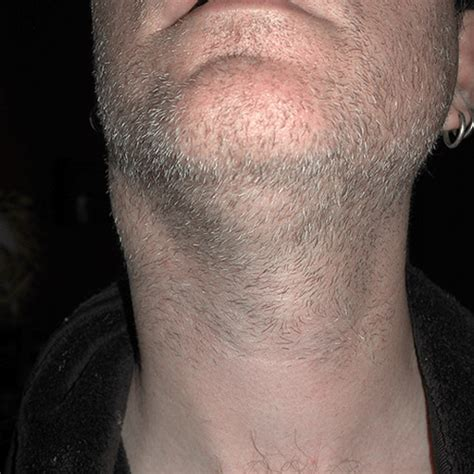 swollen lymph nodes neck lump in neck lymph node pictures to pin on pinsdaddy