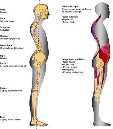 posture and pain gisurgeryinfo the affect of increased kyphosis of the thoracic spine and