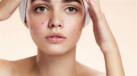 gambar wajah berjerawat 5 tanda iritasi wajah karena produk kecantikan beauty