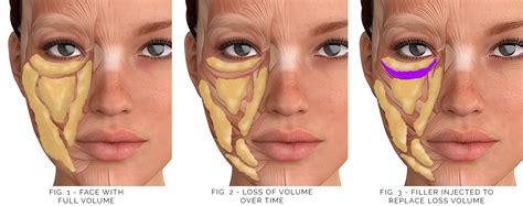pics of buccal hollow filler juvederm under eyes reviews hairsstyles co
