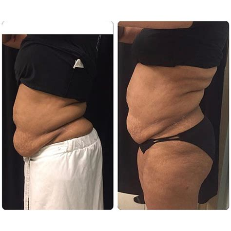weight loss spa chicago how coolsculpting chicago reduction med spa