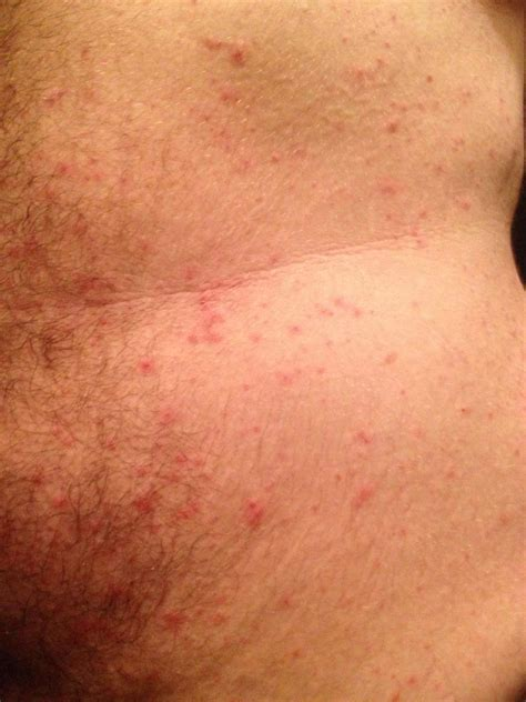 my itchy u treatments concern what are these itchy bumps all my skin itchy skin bumps