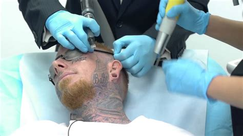 video of tattoo removal of getting removed