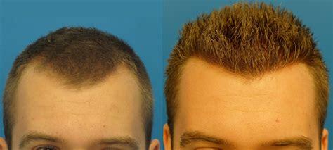 fut hong kong hair transplant hair transplant photo norwood 3 hasson wong